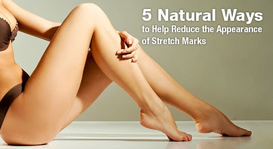 help-reduce-stretch-marks_feature-blog