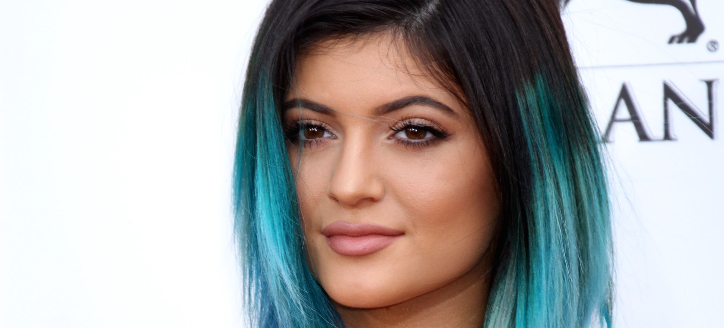 "Kylie Jenner FINALLY Admits to ""Temporary Lip Fillers"""