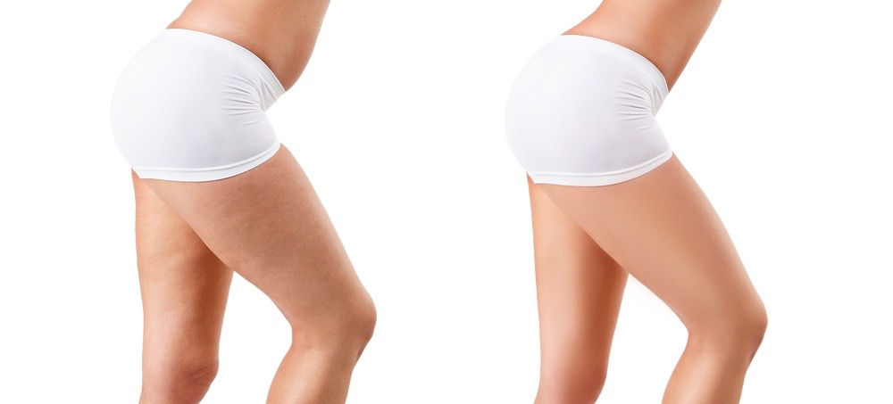 Your Ultimate Guide to All Things Cellulite (Including How to Get Rid of It)