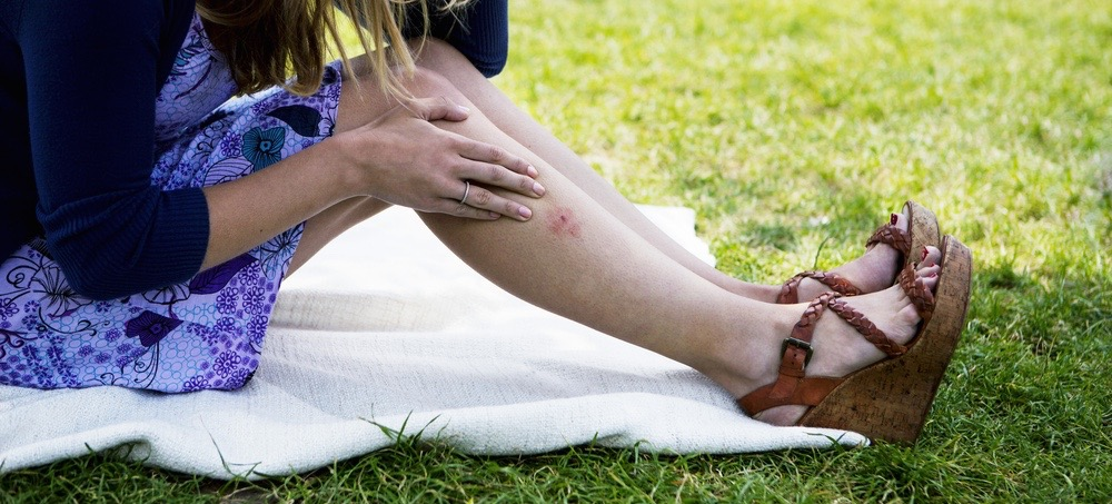 How To Avoid Bug Bites (And Remedies For When You Don't)