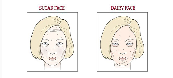 Do You Suffer From Wine Face? What About Sugar, Dairy, Or Gluten?