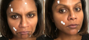 6 Celebrity Zit-Cream Selfies, Because They're Humans Too
